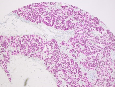 Positive Cholangiocellular