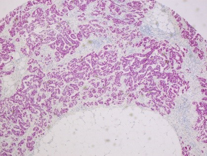Viable Cholangiocellular